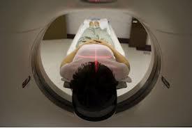 Definisi dan Fungsi MRI Scan